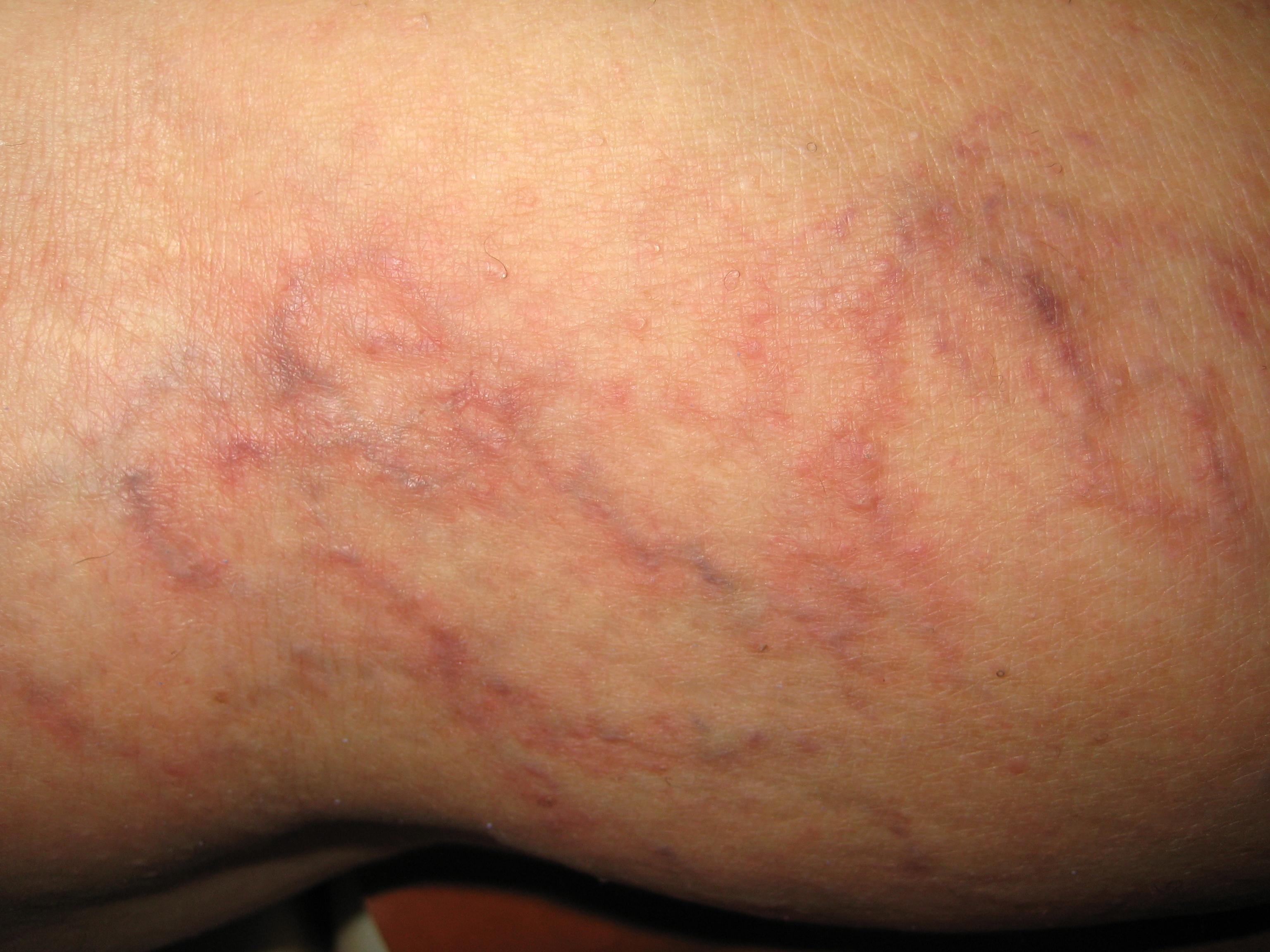 pigmentarea pielii în tratamentul cu varicoză tinctura din plante pentru tratamentul varicozei