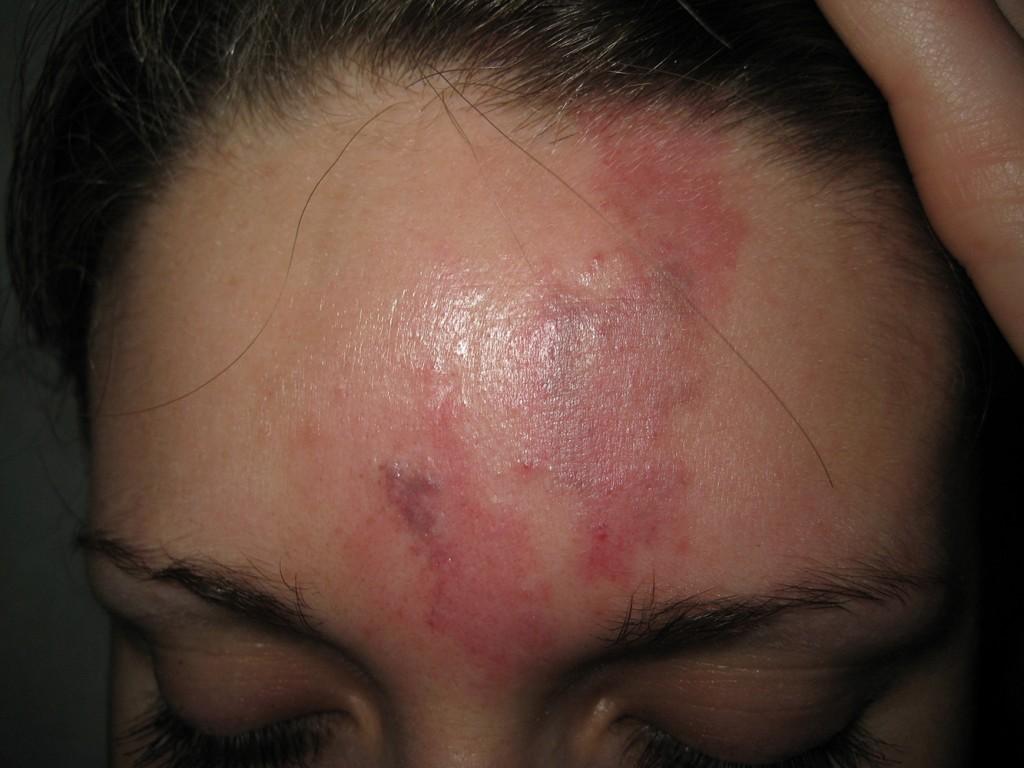 Hämangiom vor und nach der Behandlung 2
