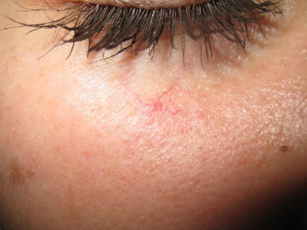 Vaskuläre Stern vor der Behandlung 2