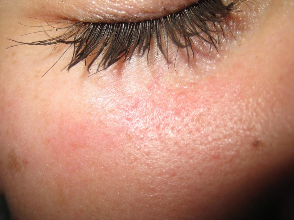 Vaskuläre Stern nach der Behandlung 2