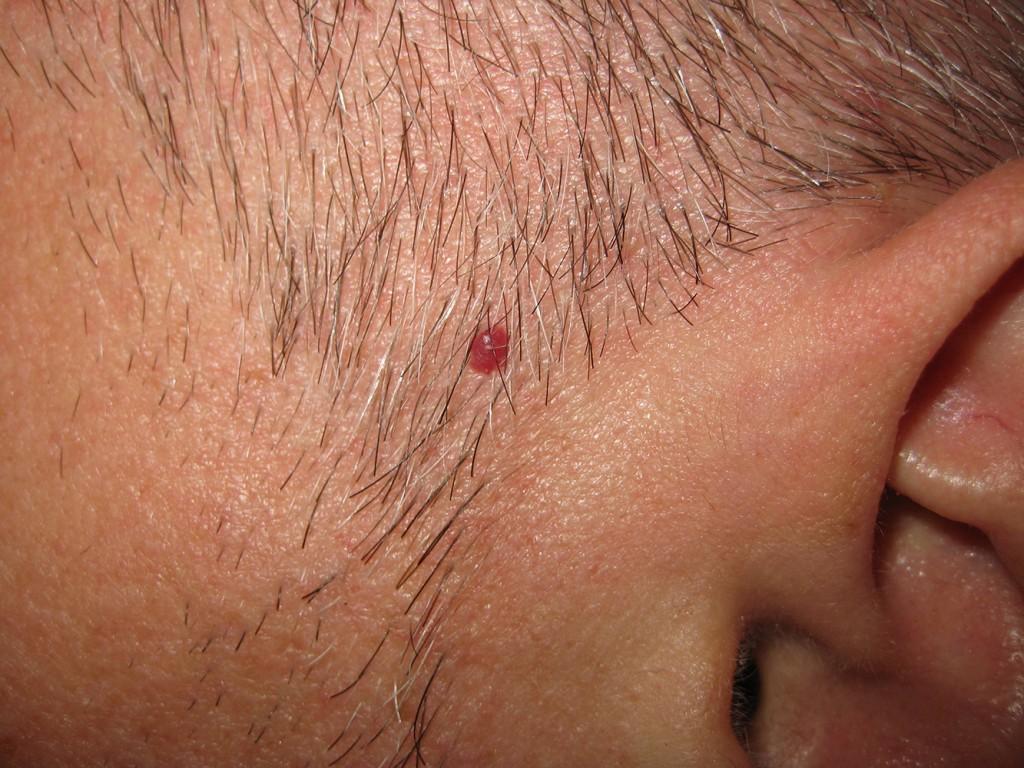 Vaskuläre Stern vor der Behandlung 4