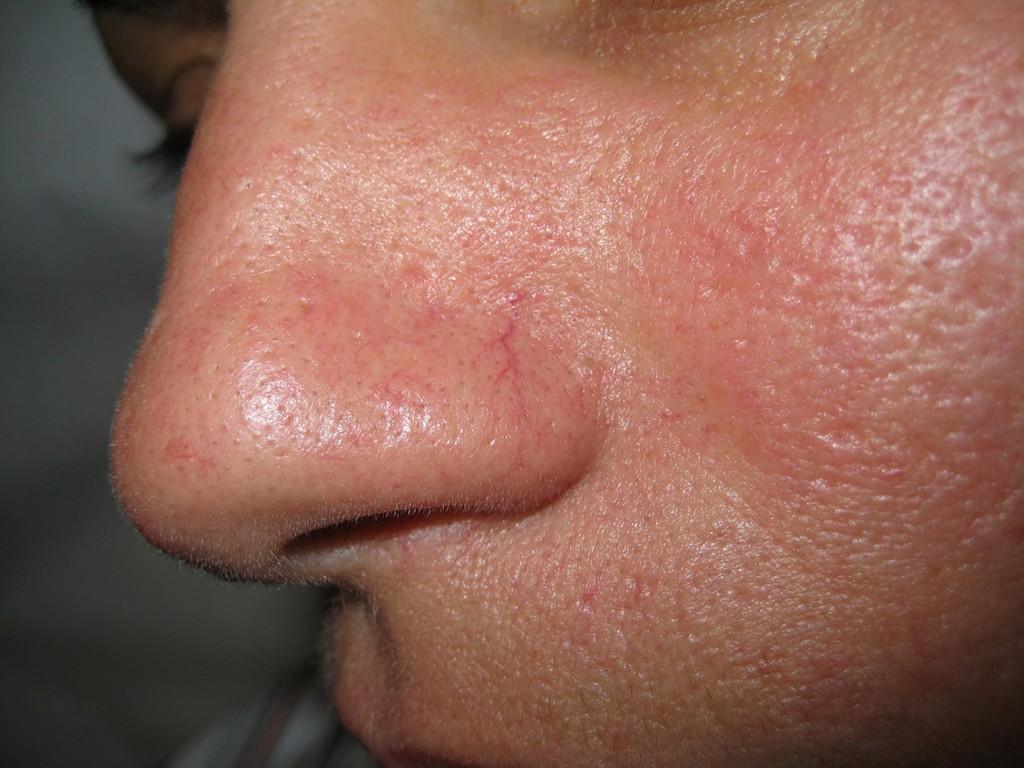 Teleangectasie nas înainte şi după tratament 1
