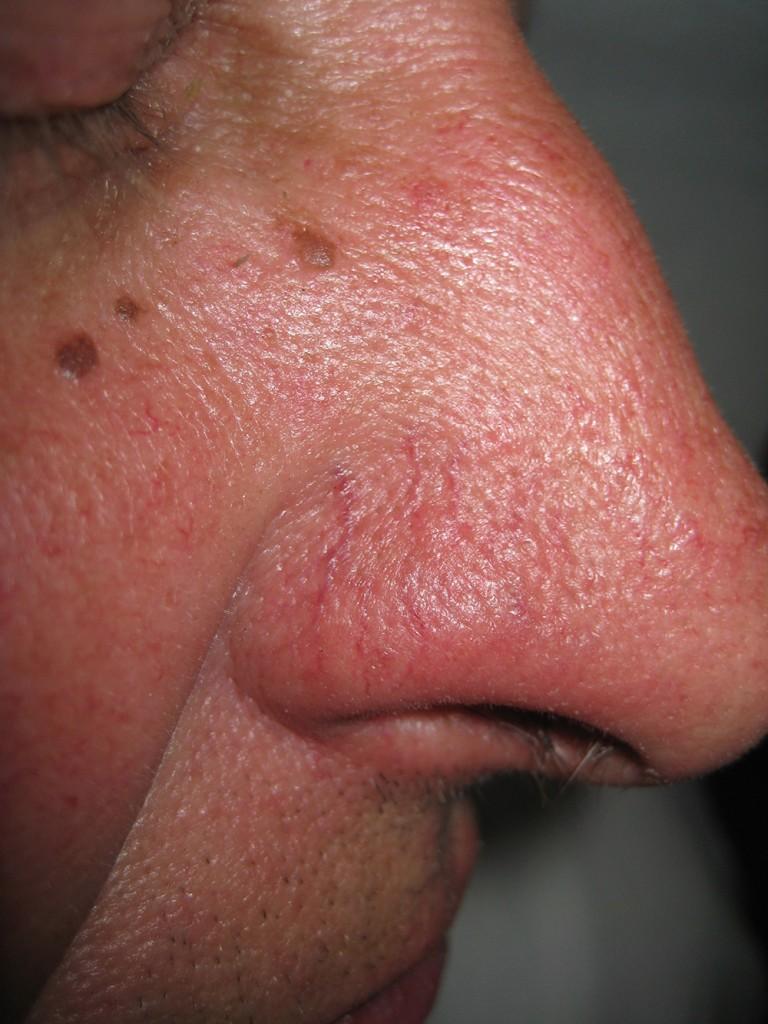 Teleangectasie Nase vor und nach der Behandlung 3