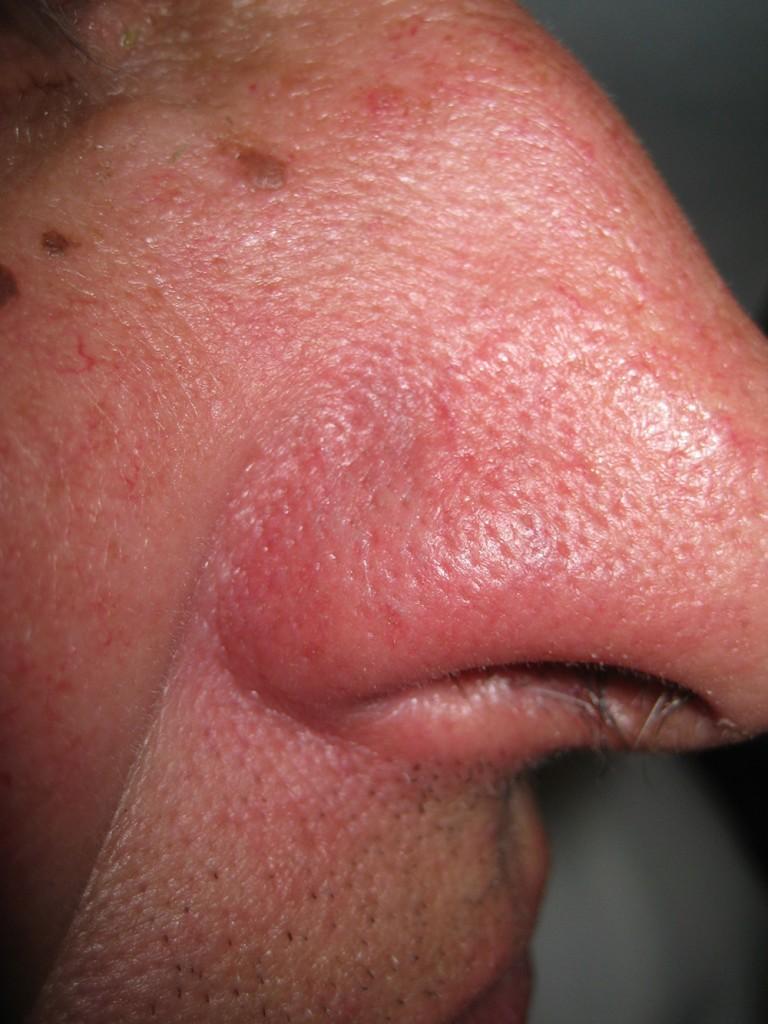 Teleangectasie Nase vor und nach der Behandlung 4