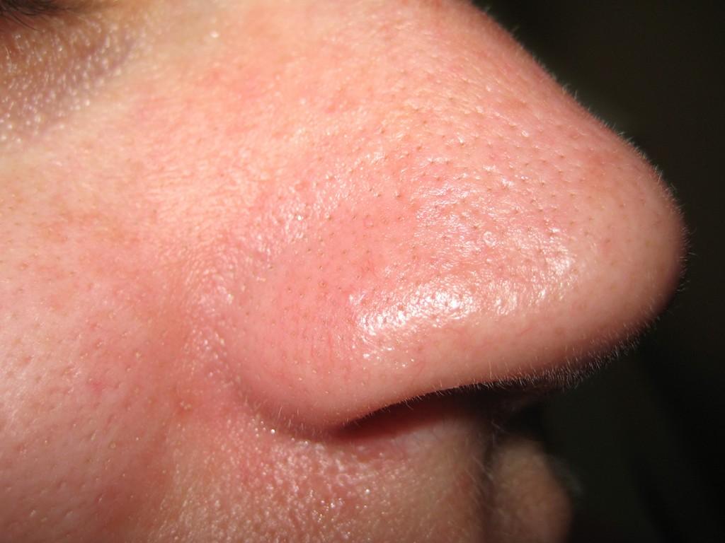 Teleangectasie Nase vor und nach der Behandlung 6
