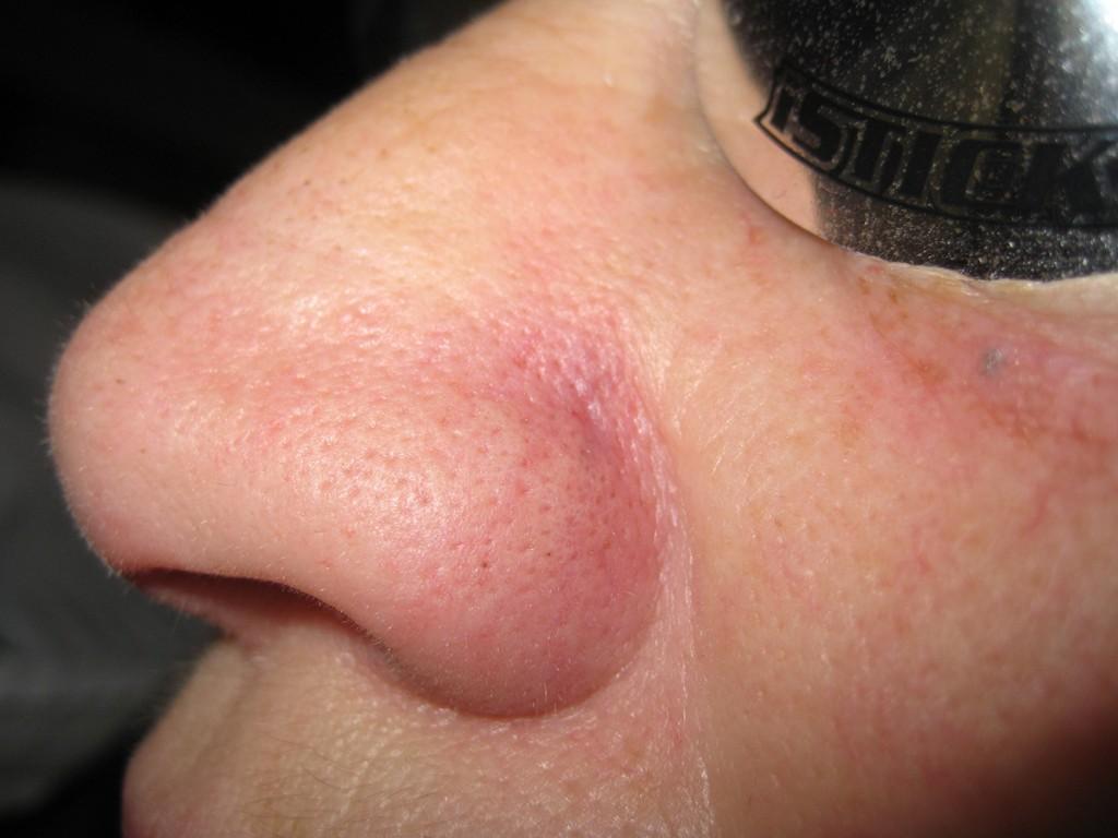 Teleangectasie Nase vor und nach der Behandlung 8