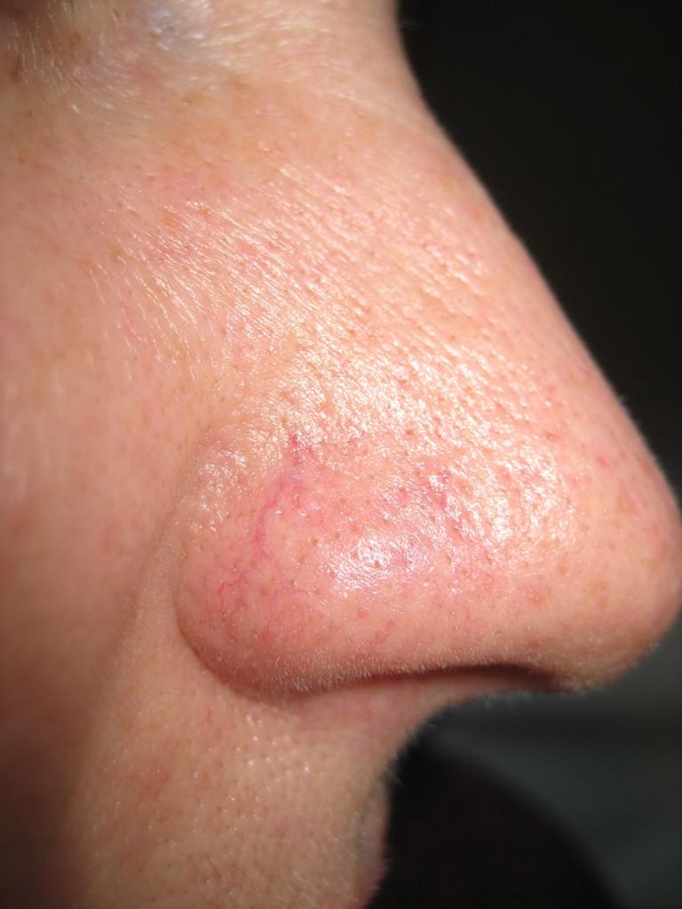 Teleangectasie Nase vor und nach der Behandlung 9