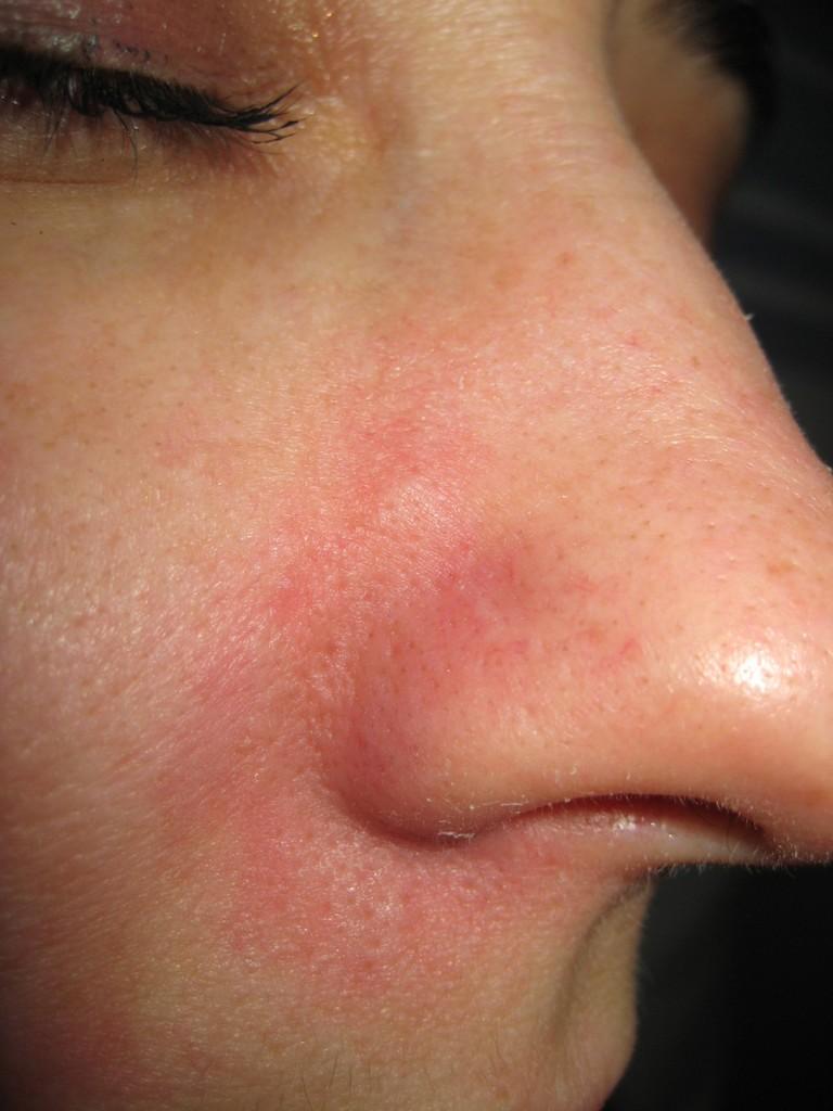 Teleangectasie nas înainte şi după tratament 12