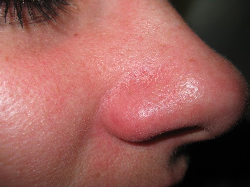 Teleangectasie nas înainte şi după tratament 14