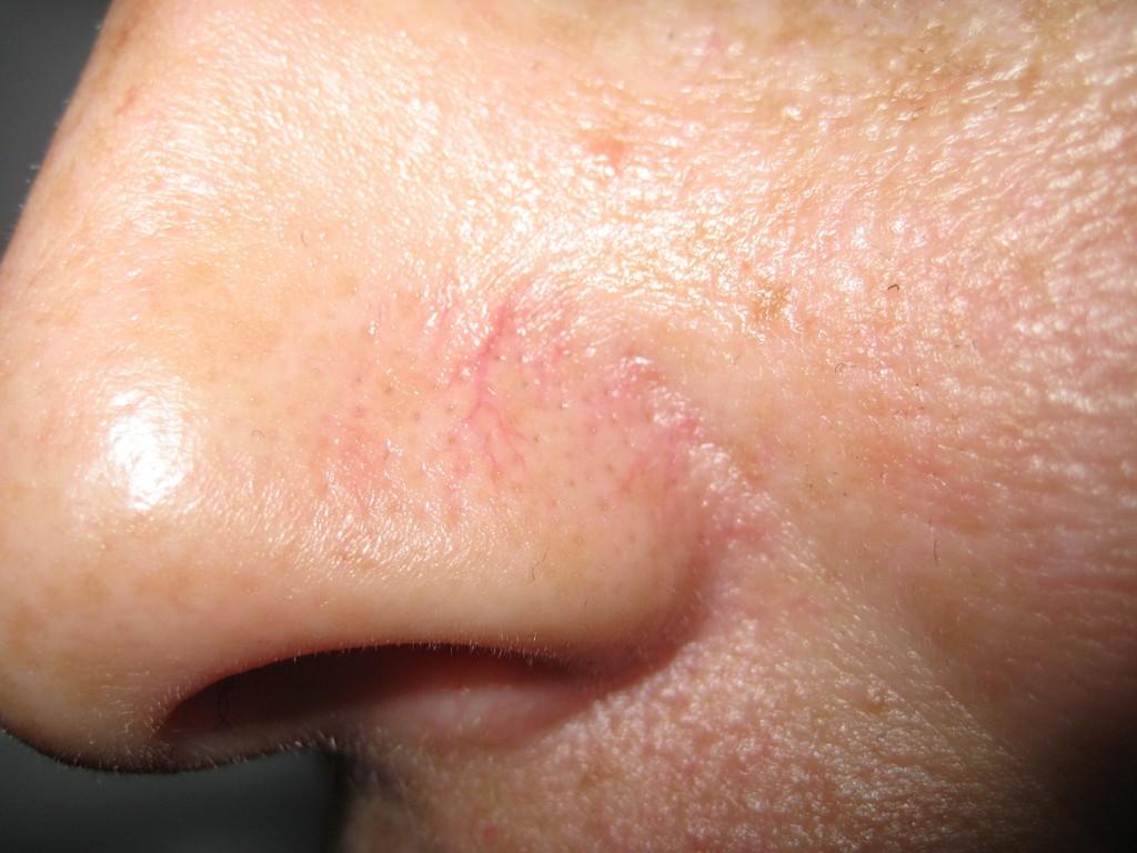 Teleangectasie Nase vor und nach der Behandlung 15