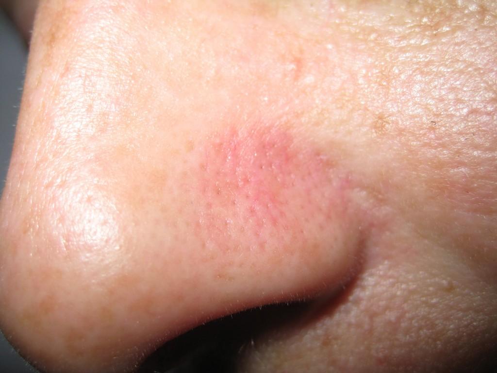 Teleangectasie nas înainte şi după tratament 16