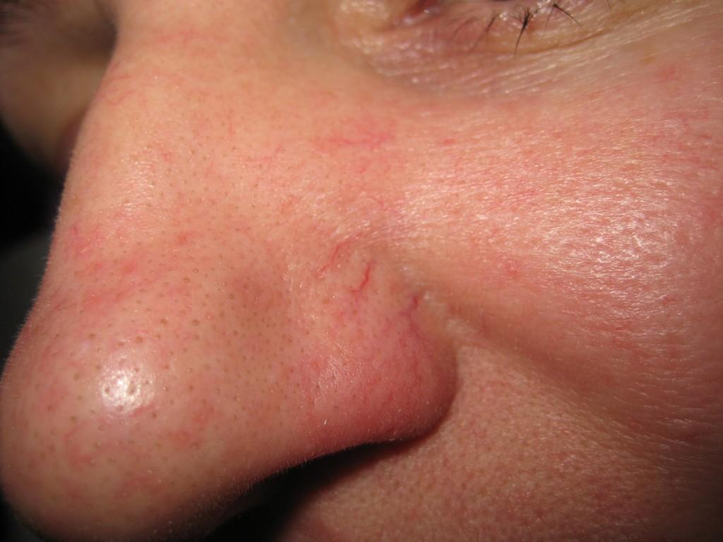 Teleangectasie nas înainte şi după tratament 19