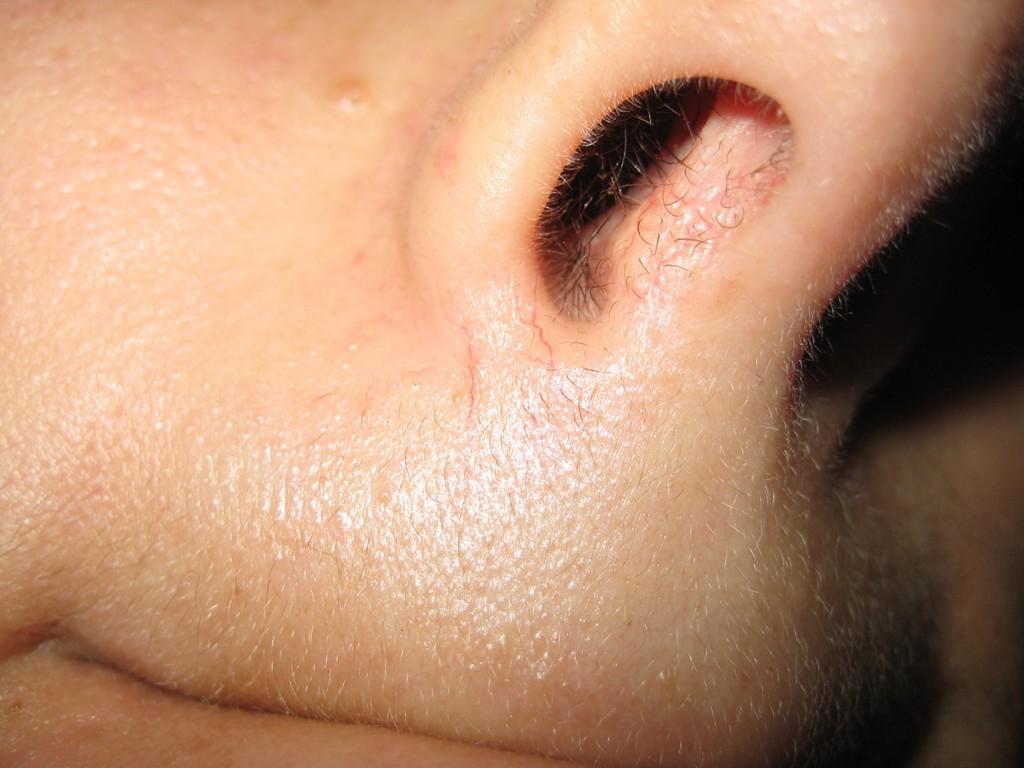 Teleangectasie Nase vor und nach der Behandlung 21