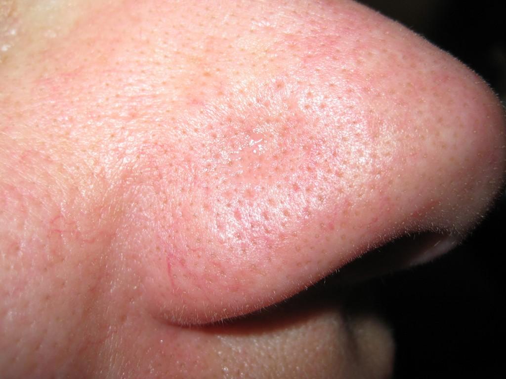 Teleangectasie Nase vor und nach der Behandlung 24