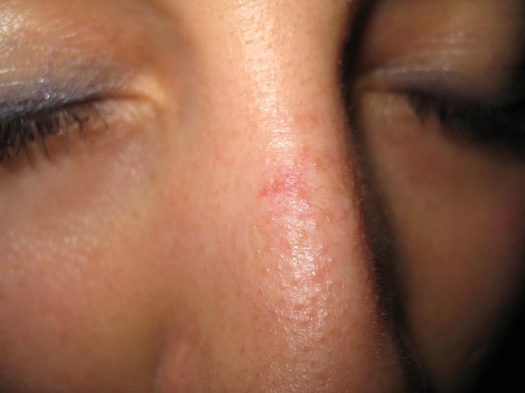 Teleangectasie Nase vor und nach der Behandlung 25