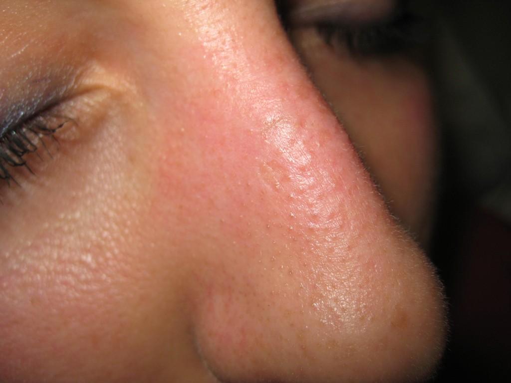 Teleangectasie Nase vor und nach der Behandlung 26
